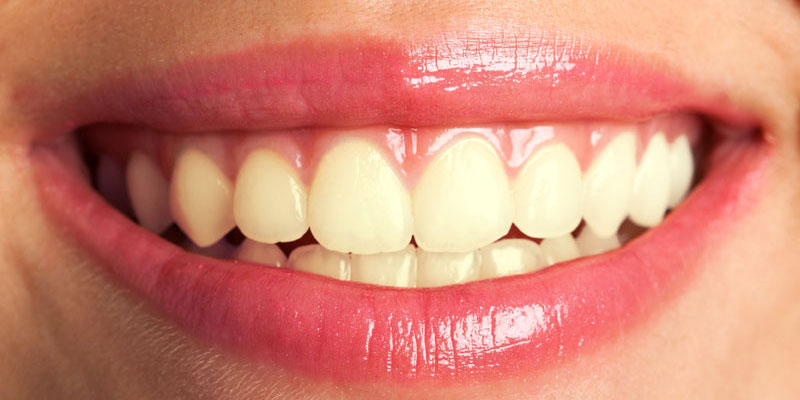 What is Whitening?