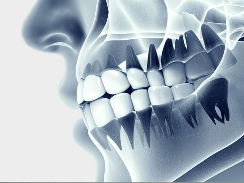 Dental Görüntüleme Merkezi
