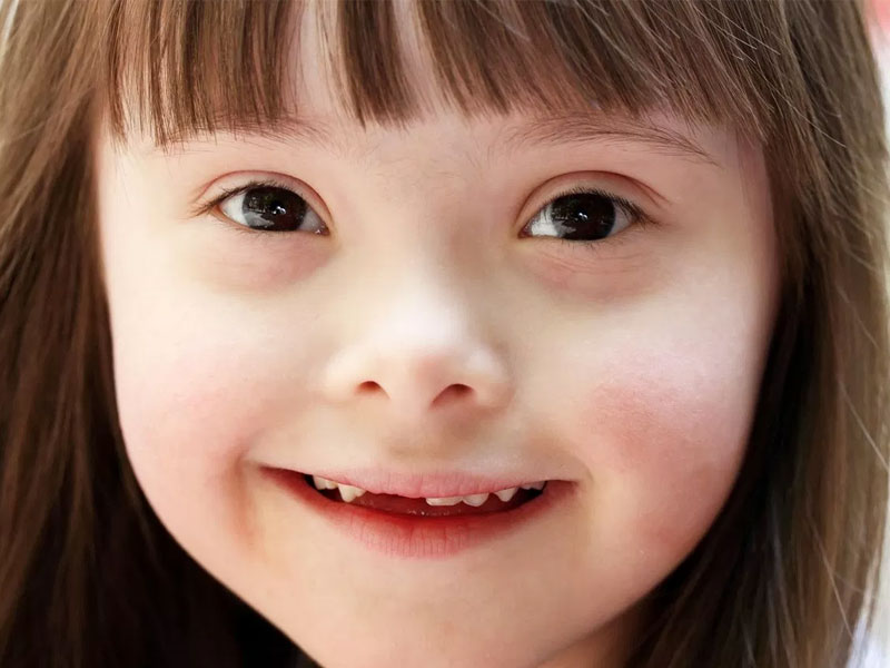 The Relationship Between Oral and Dental Health in Down Syndrome