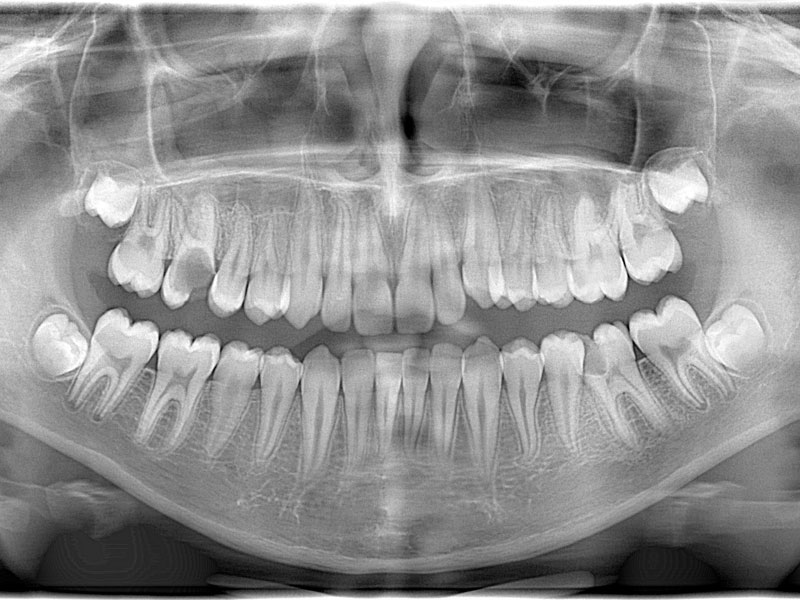 Oral Diagnosis & Dental X Rays