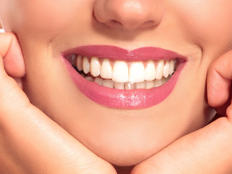 Do Not Neglect Your Dental Treatment in Ramadan